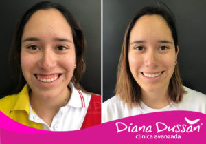 Sonrisa-Gingival Clinica Diana Dussan