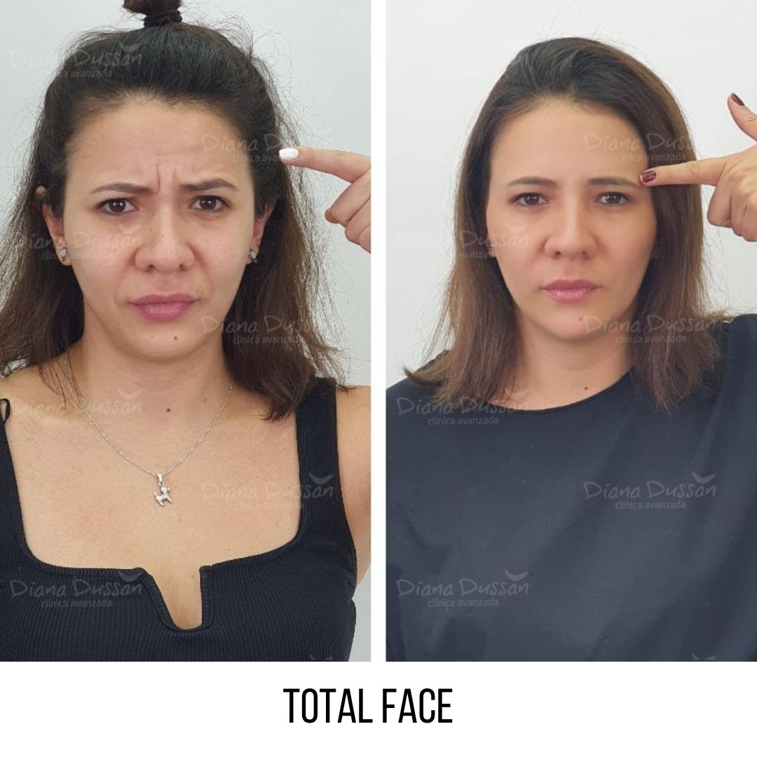 Total Face Diana Dussan 22