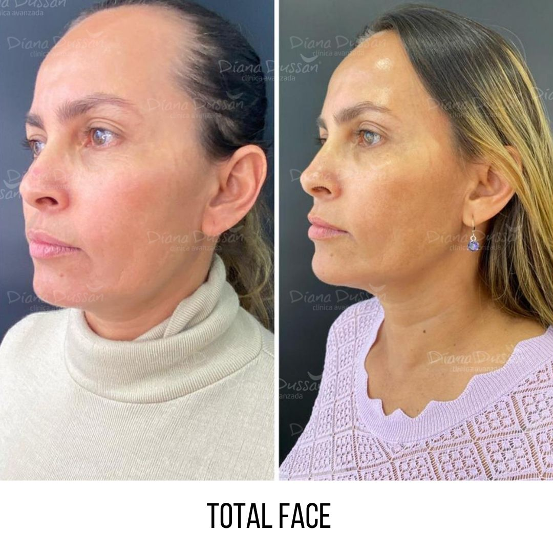 Total Face Diana Dussan 23