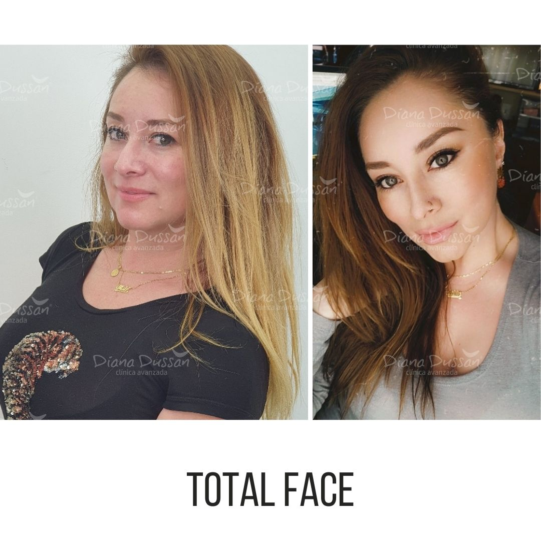 Total Face Diana Dussan 24
