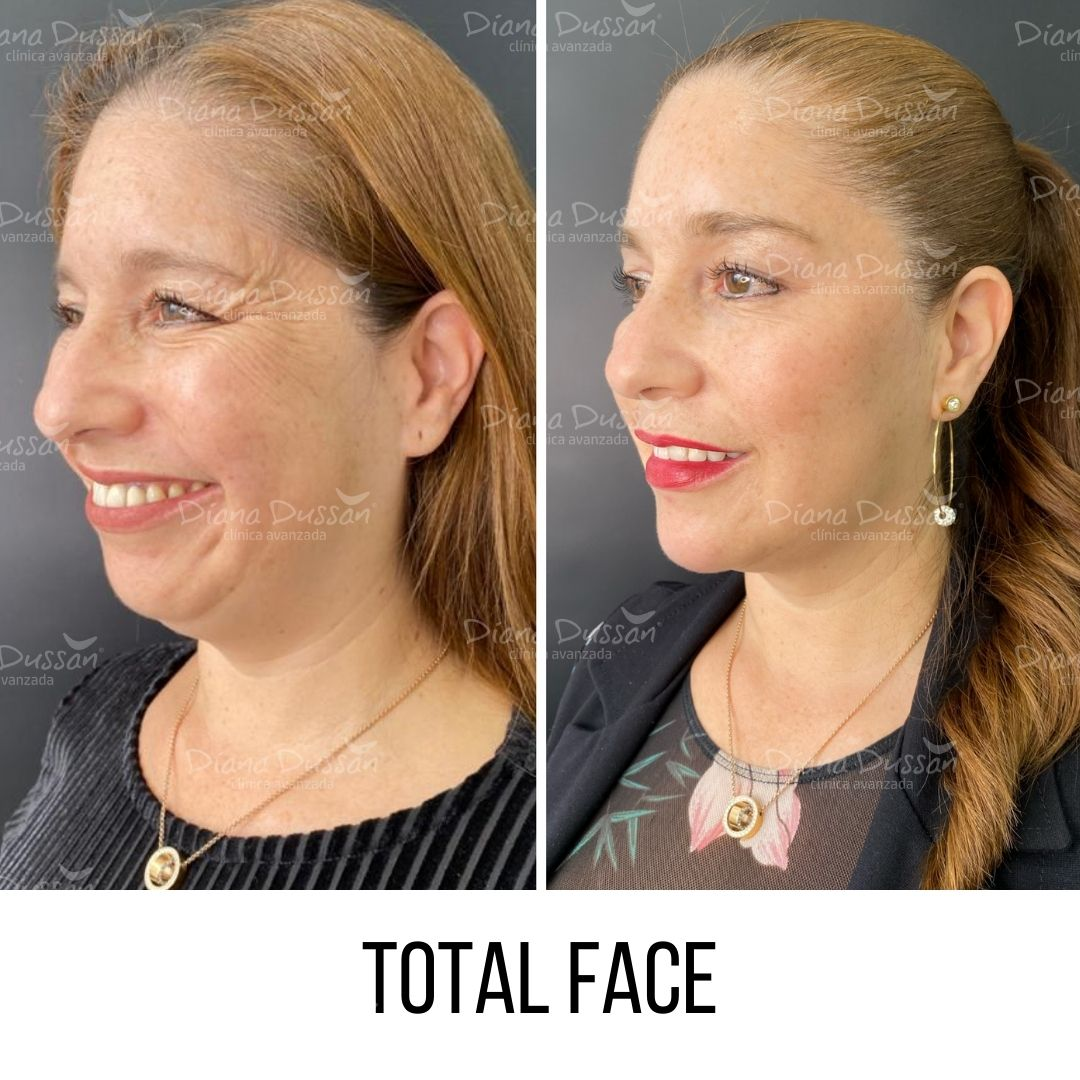 Total Face Diana Dussan25