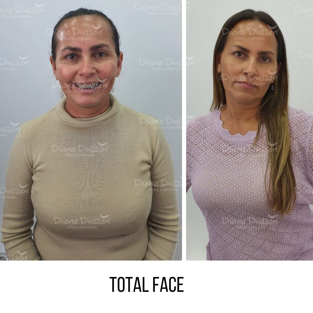 Total Face Diana Dussan26