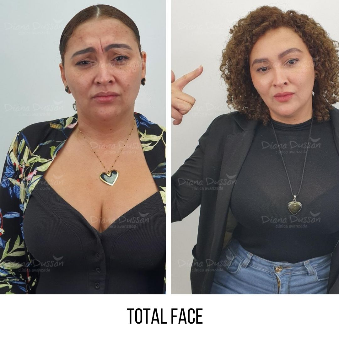 Total Face Diana Dussan27